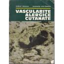 VASCULARITE ALERGICE CUTANATE de SCARLAT LONGHIN